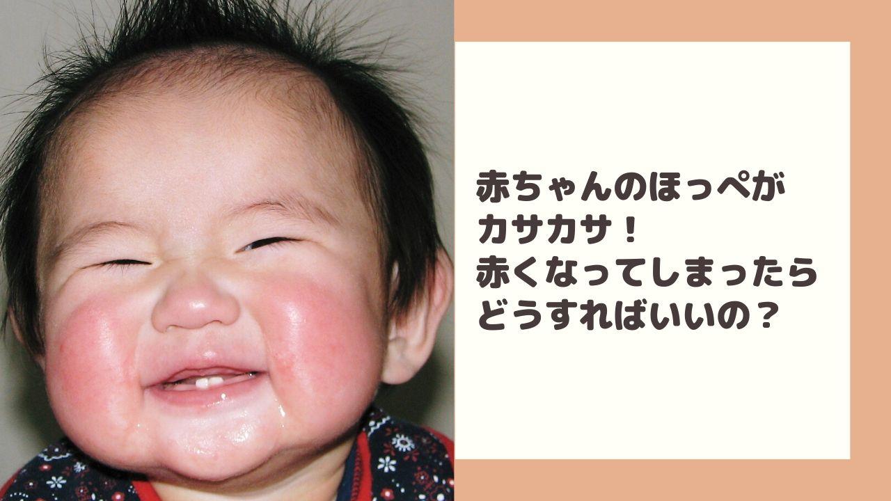 赤ちゃんのほっぺがカサカサ!赤くなって乾燥してしまったらどうすればいいの?